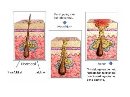 kinghs acne